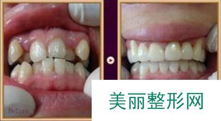 牙齿矫正效果图