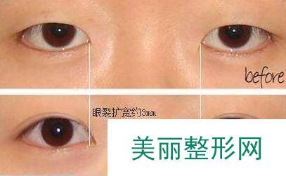 双眼皮开眼角整形前后对比图,郑州哪家整形医院好?