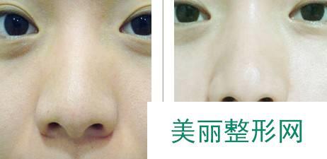 武汉医院做彩光嫩肤多少钱一次
