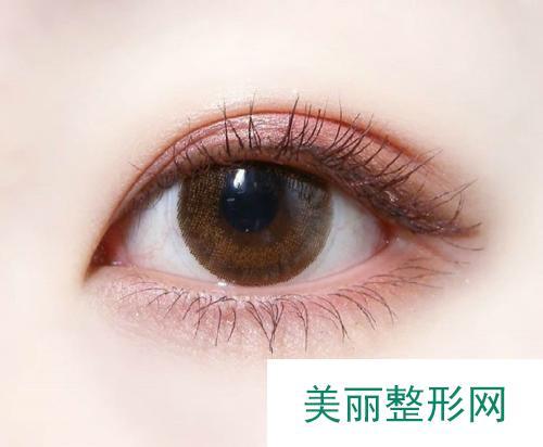 上海割双眼皮手术多少钱?