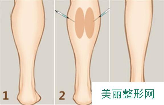 保妥适瘦腿针的价格是多少?术后注意事项