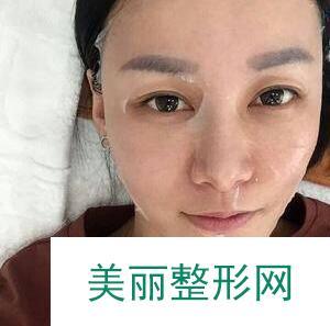 做光子嫩肤要多少钱 光子嫩肤术后效果分享_案例