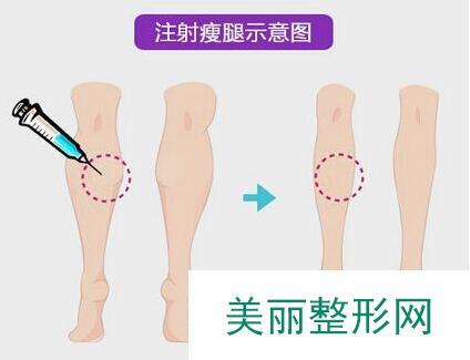 瘦腿针多少钱?瘦腿针价格盘点及术后护理!