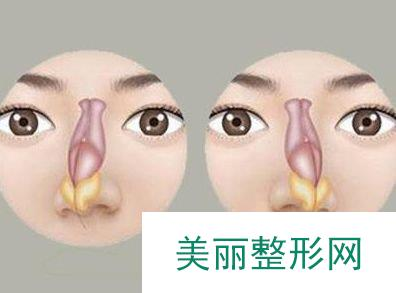 歪鼻矫正术一般需要多少钱 价格?