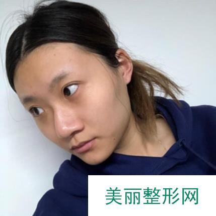 北京愉悦医疗美容医院怎么样?坐诊医生列表丨眼鼻案例效果图~