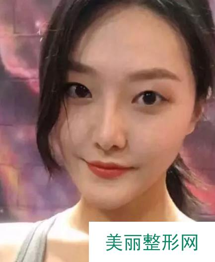 浙一徐靖宏割双眼皮案例,内双变全双效果杠杠的!