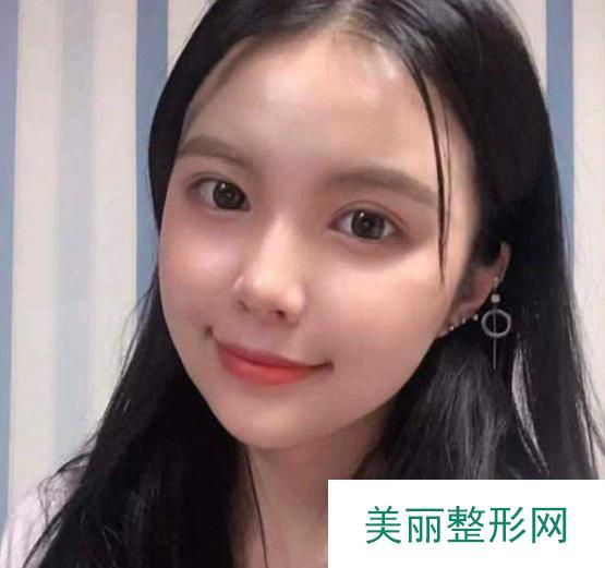 广州第一人民医院整形外科靠谱吗?专家团队+热玛吉术后效果~