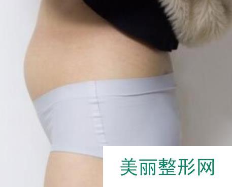 河北省儿童医院整形美容科怎么样?专家团队+腰部环吸案例分享~