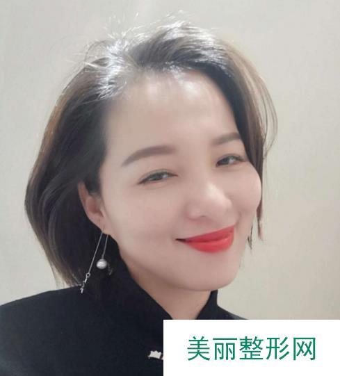常州第一人民医院整形李菊妹医生简介+激光祛痘坑案例~