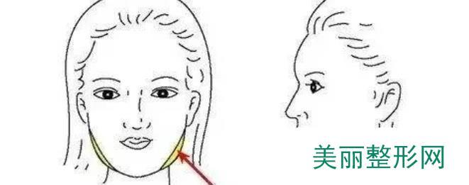 瘦脸针注意事项有哪些