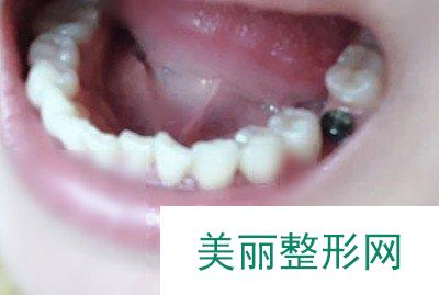 邵阳雅贝康口腔种植牙