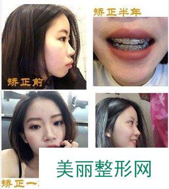 重庆协尔口腔牙齿矫正案例