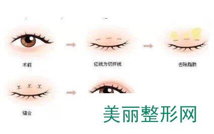 吴慧玲双眼皮修复经历