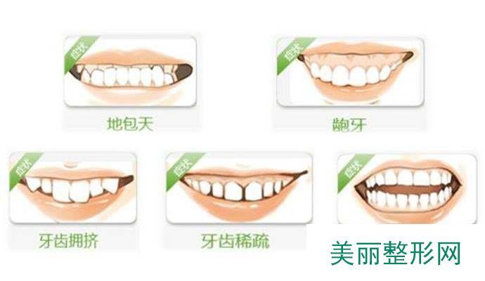 科普:为什么需要牙齿矫正