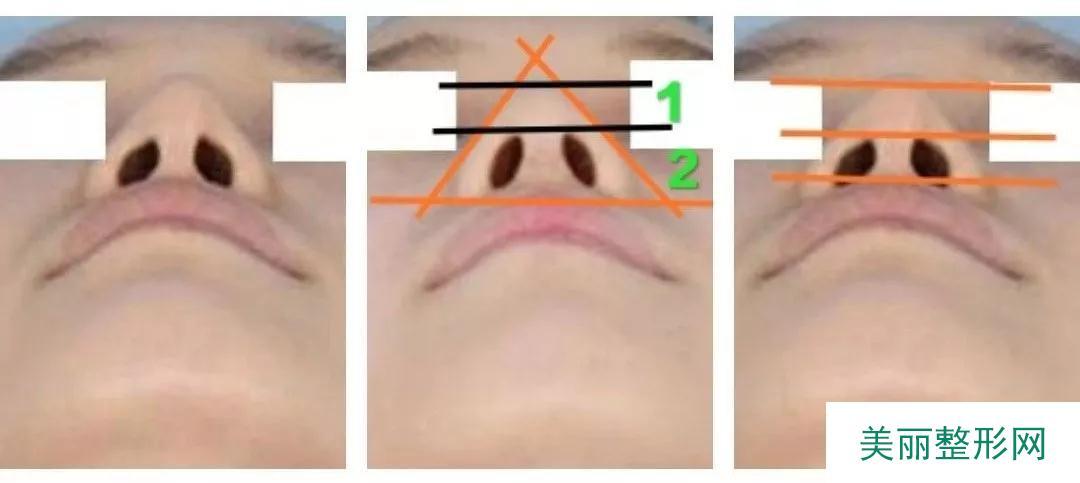 低鼻尖整形