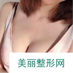 深圳美洛斯医疗美容隆胸案例: