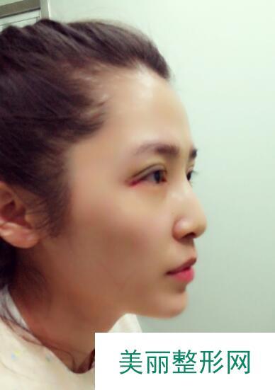 深圳名丽医疗美容医院割双眼皮案例: