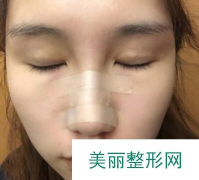 深圳名丽医疗美容医院隆鼻案例: