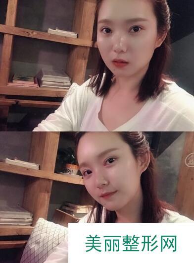 深圳南雅整形美容医院双眼皮手术案例: