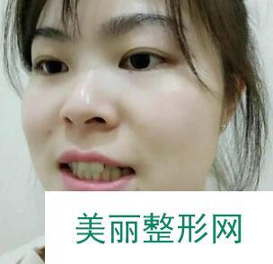 厦门口腔医院牙齿矫正案例