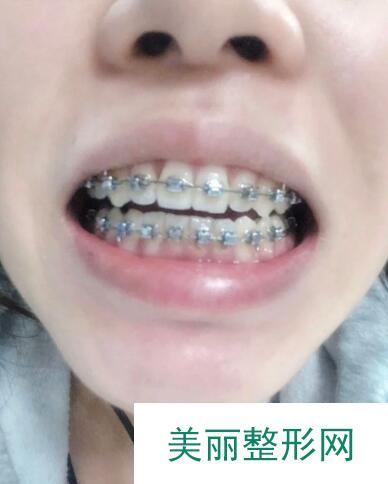 扬州口腔医院牙齿矫正案例