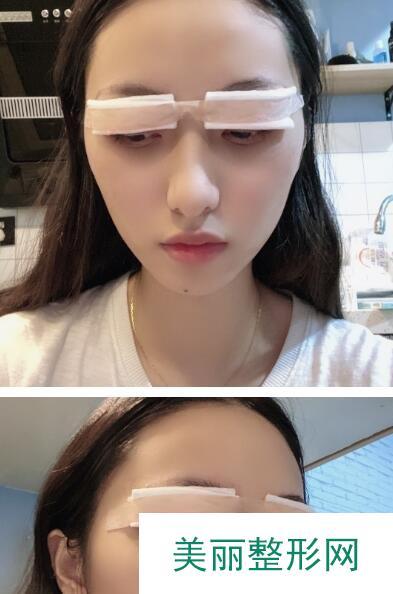 双眼皮案例反馈