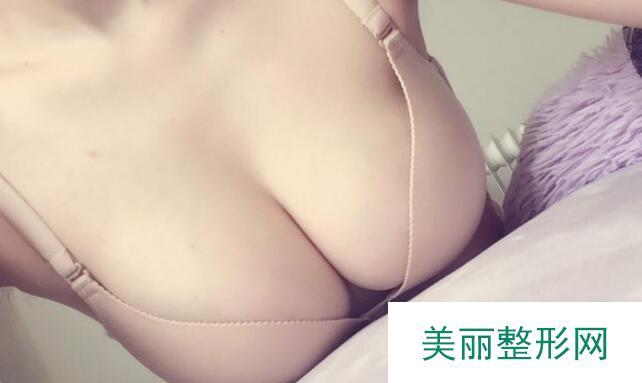 成都怡脂邓萌隆胸怎么样?隆胸案例: