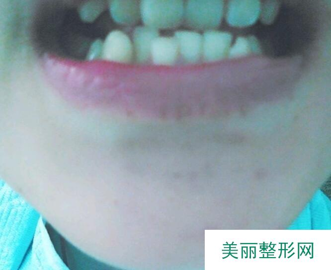 侯马文良口腔牙齿矫正案例