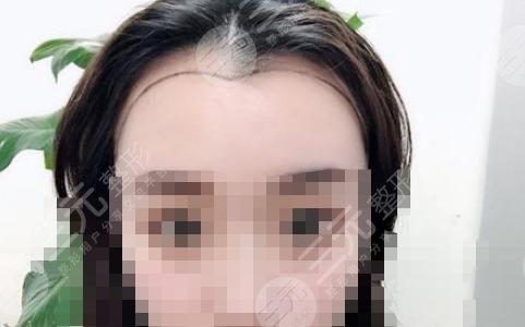 湘雅二医院整形科植发前