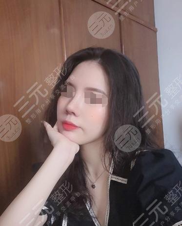莎蔓莉莎美容院隆鼻整形后50天