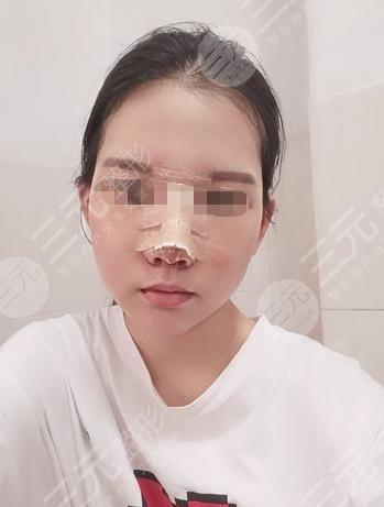 莎蔓莉莎美容院隆鼻整形后15天