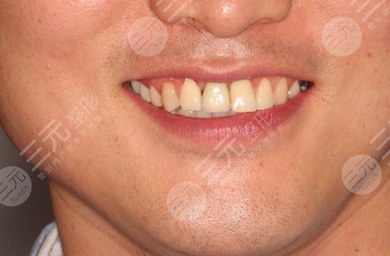徐汇牙防所种植牙案例