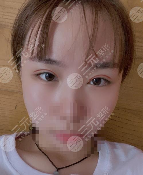 诸暨人民医院整形科双眼皮案例