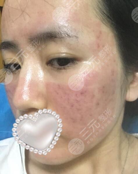 上海九院激光美容祛痘案例