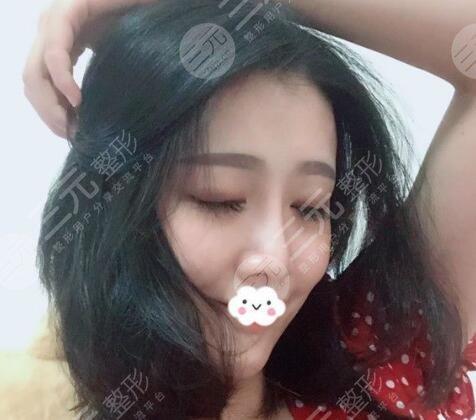 上海九院隆鼻案例效果图
