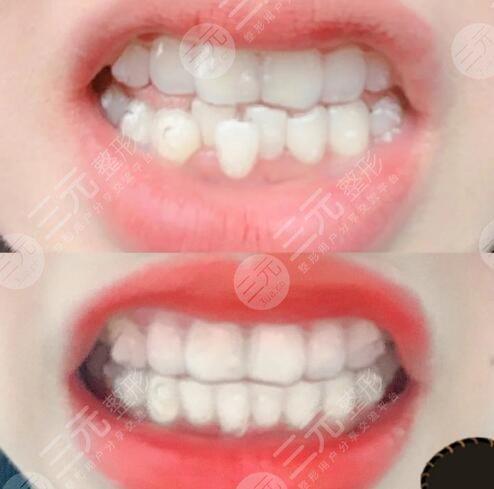 北京维尔口腔医院牙齿矫正案例