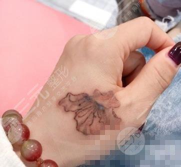北京空军总医院洗纹身