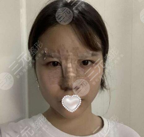 西京医院整形科隆鼻案例
