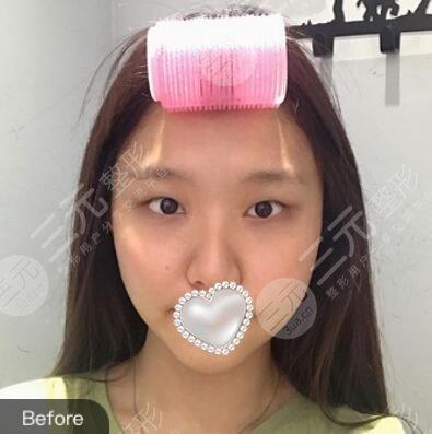 西安西京医院整形美容科双眼皮案例
