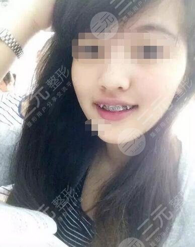 交大口腔医院牙齿矫正案例