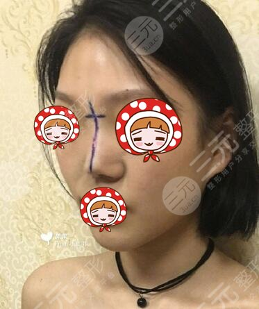上海dream整形隆鼻面诊