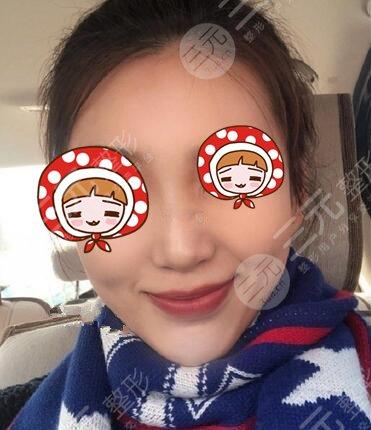 上海dream整形隆鼻术后