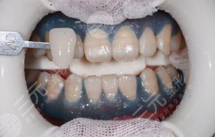济宁口腔牙科美白洁牙案例