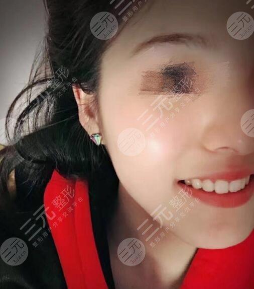 桂林口腔医院牙齿矫正案例