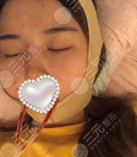 北京八大处整形医院磨骨案例
