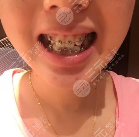 光华口腔医院牙齿矫正案例