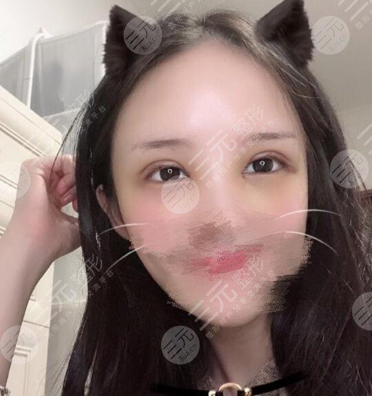 上海九院美容整形科双眼皮效果图