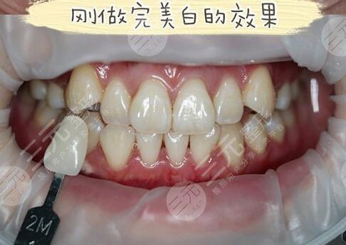 格伦菲尔口腔牙齿美白案例后