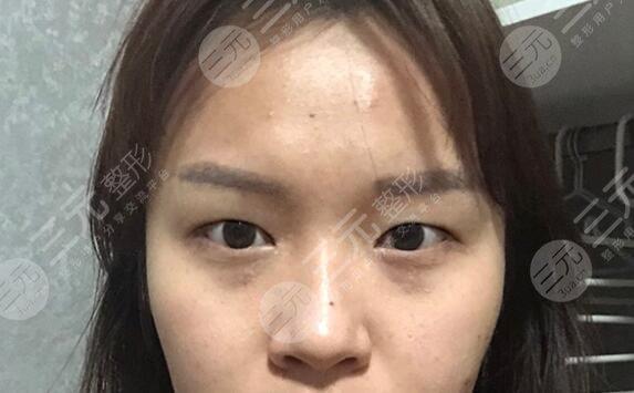 割双眼皮案例前