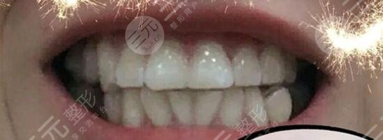 赣州口腔医院牙齿矫正效果前